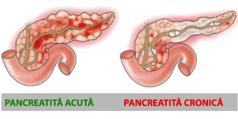 pierdere în greutate cu pancreatită